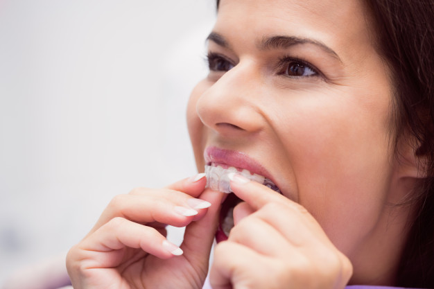 Are you Deciding to Straighten your Smile with Invisible Braces?